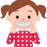 【子供の歯列矯正】矯正中に気をつけたいことと体験談!